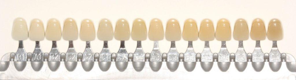 prótesis dental dientes amarillos tonos medical implant