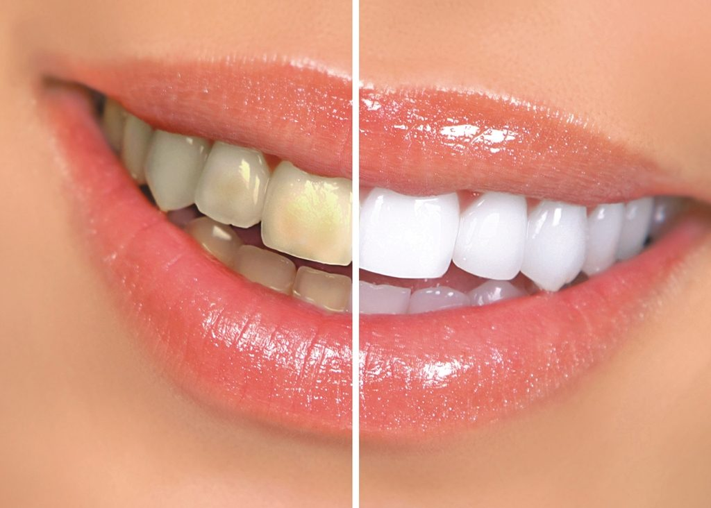 dientes amarillos medical implant