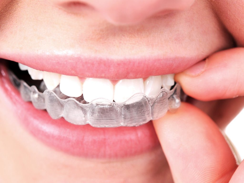 Medical-Implant-ortodoncia-invisible-Invisalign-Tenerif