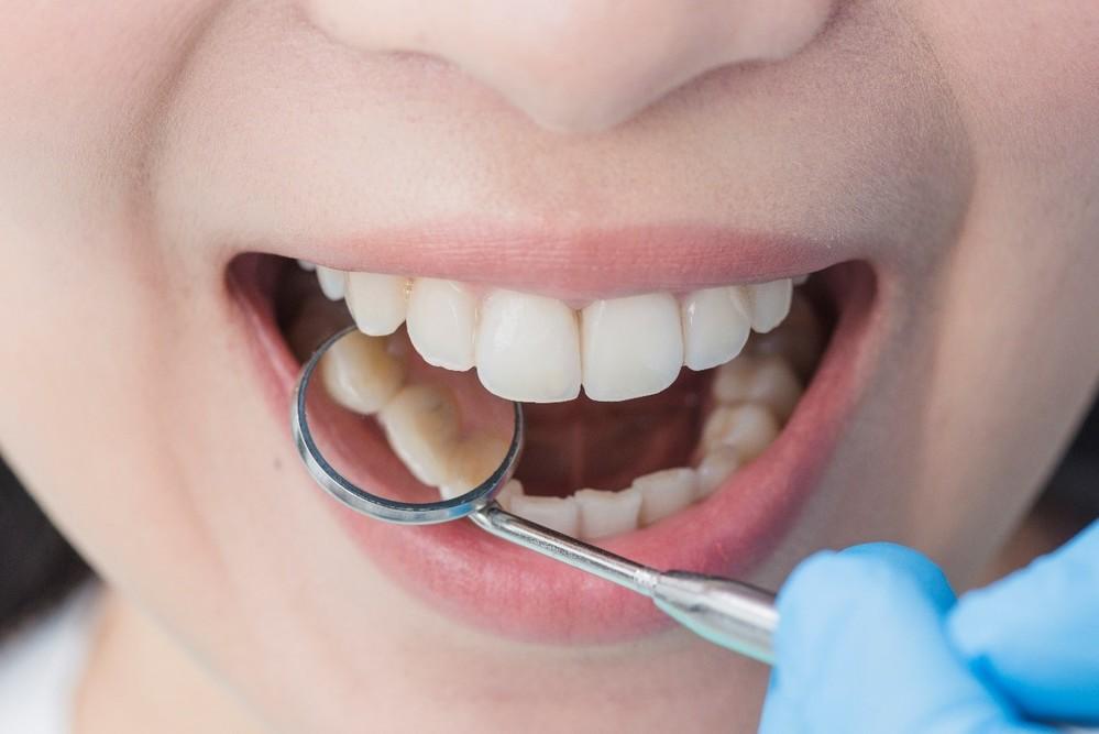 Muelas del juicio dentista tenerife